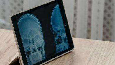 Tecnologia nuova generazione cura danni celebrali